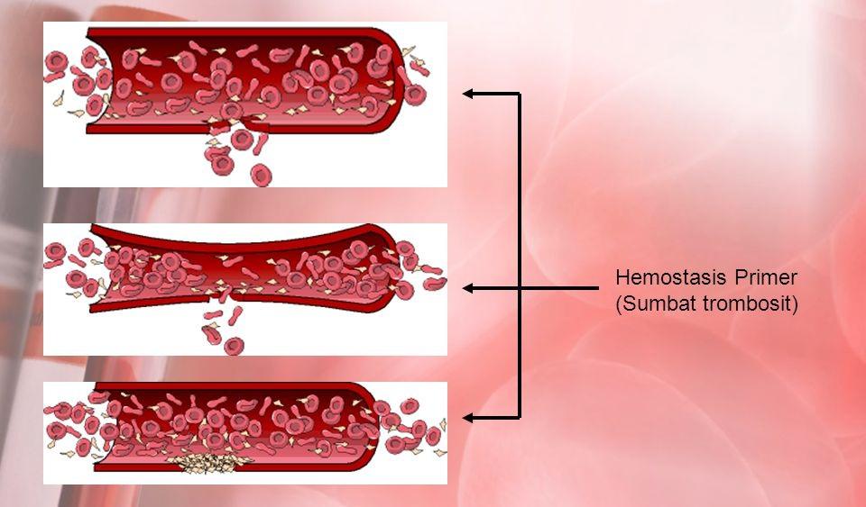 Proses penghentian perdarahan primer dengan kontraksi pembuluh darah dilanjutkan sumbat trombosit (slideplayer.com/slide/5686548)