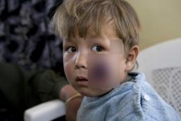 Salah seorang anak pengungsi Afghanistan yang terjangkit Leishmaniasis. Photo: WHO, Chistopher Black