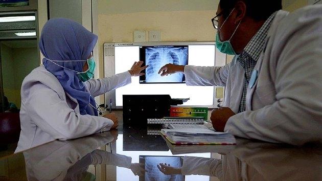 Petugas medis menganalisis rontgen kanker paru-paru pasien yang menjalani perawatan di Klinik Paru RSUP Persahabatan, Jakarta Timur (3/3-2017). Sebanyak 90 persen pasien kanker paru-paru memiliki riwayat sebagai perokok. (Sumber: Harian KOMPAS/WAWAN H PRABOWO)
