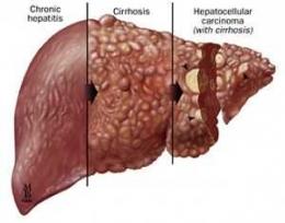 Gambar hati terkena hepatitis (gambar:pphi-online.org)