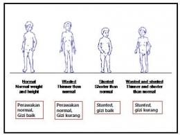 Tentang Stunting di Indonesia, sumber gambar dr. Klara Yuliarti, SpA (K)