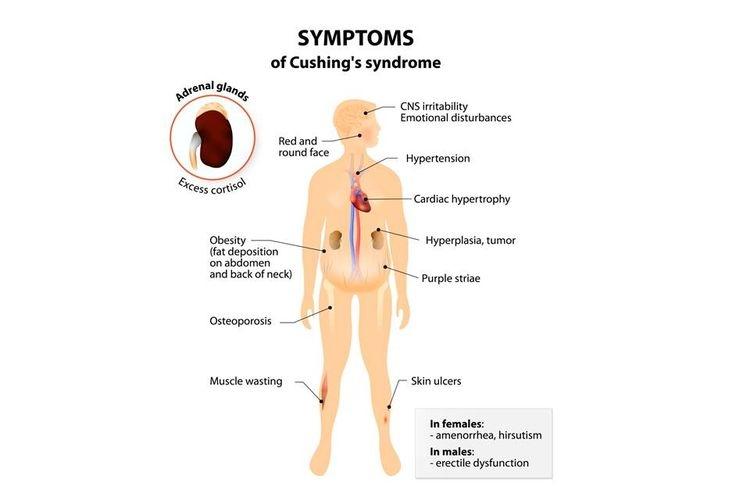 Cushing Syndrome| Sumber: Shutterstock via Kompas.com