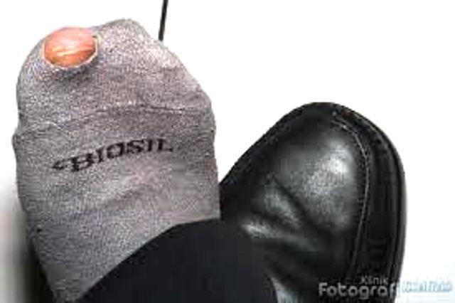 Ilustrasi kaus kaki bolong, sumber: startfmmadina.com