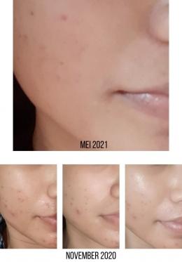 Kondisi kulit wajah setelah penggunaan Marine Collagen | Dokumen pribadi