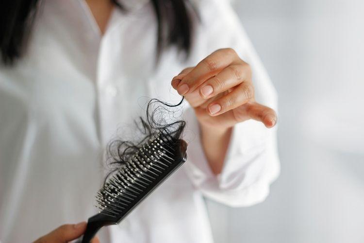 Rambut rontok setelah melahirkan (Sumber: thinkstockphoto via health.kompas.com)