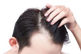 ilustrasi rambut rontok- Sumber: https://icdn.dtcn.com/