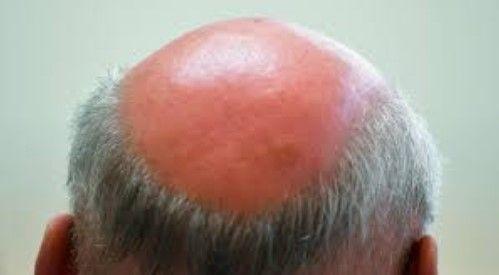 Ilustrasi rambut rontok hingga botak yang sering dianggap cerdas intelektual dan spiritual. Diambil dari: stern.de