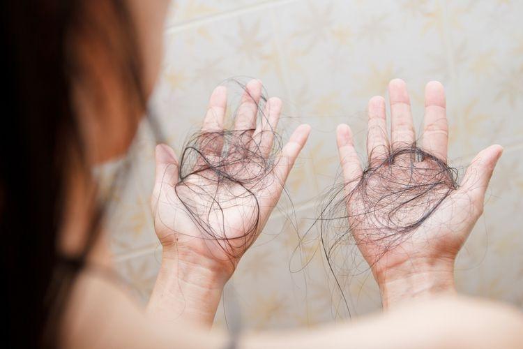 Ilustrasi rambut rontok karena stres. Sumber: SHUTTERSTOCK/Nalada Nagawasuttama via Kompas.com