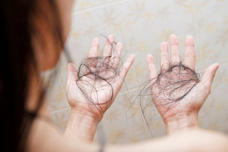 Ilustrasi pasien mengalami rambut rontok karena Covid-19, infeksi virus corona. (sumber: SHUTTERSTOCK/Nalada Nagawasuttama via kompas.com)