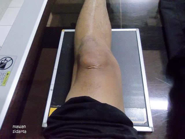 Sakit pinggang n kaki