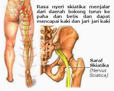 Pengobatan nyeri sendi kaki
