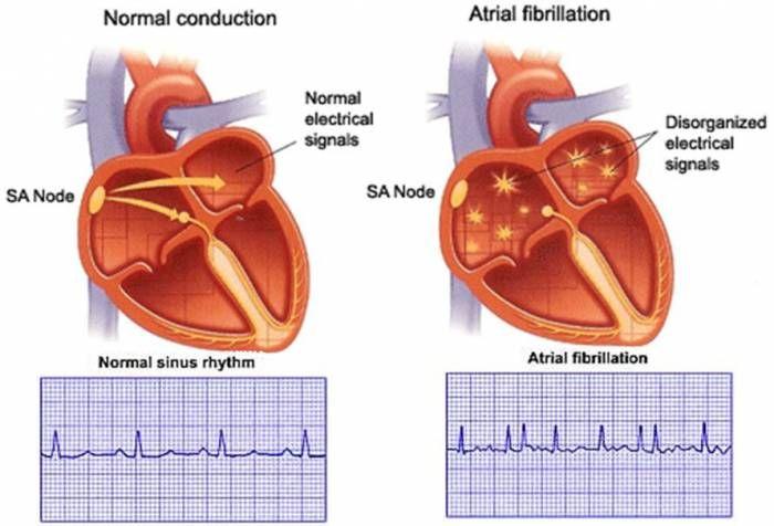 Ilustrasi detak jantung. Source image: kauveryhospital.com